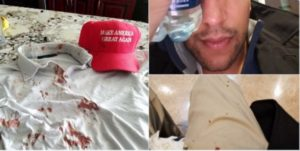 Juan Hernandez was attacked at a Trump rally in San Jose, California. /Twitter