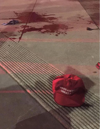 The case of a sword attack, a MAGA hat and a bloody photo posted on social media